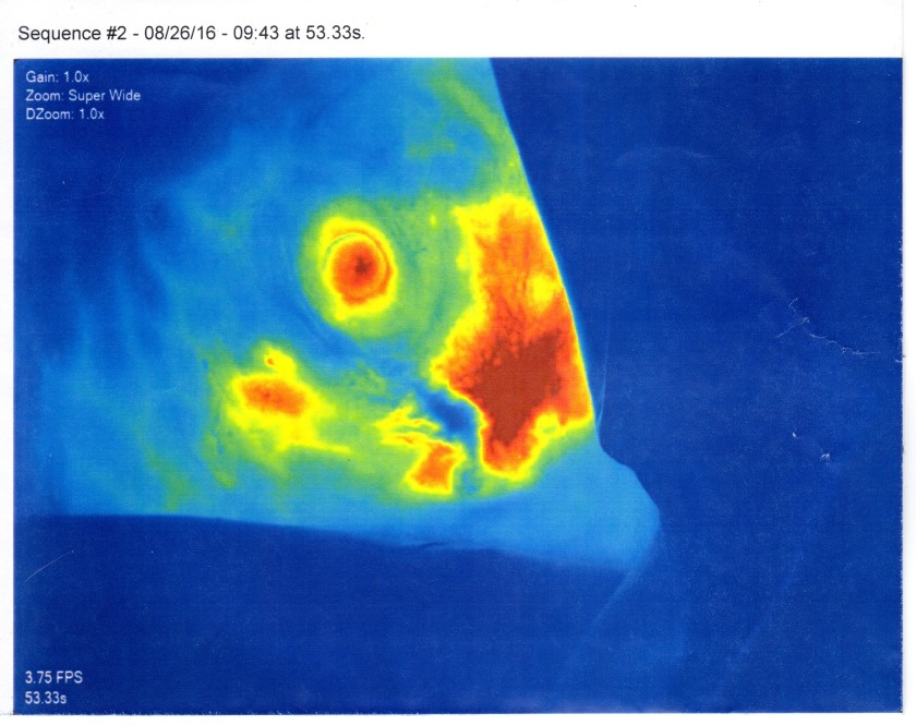 Fluorescence Vascular Angiography 001.jpg